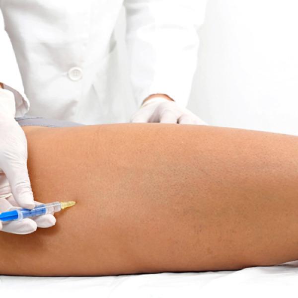 Mesoterapia controindicazioni