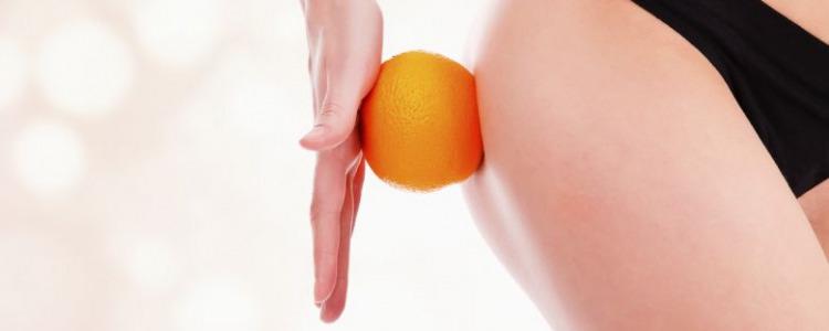 La cellulite infettiva che cos'è? Sintomi e Cure
