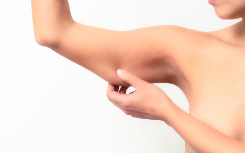 Cellulite sulle braccia, le cause e i trattamenti