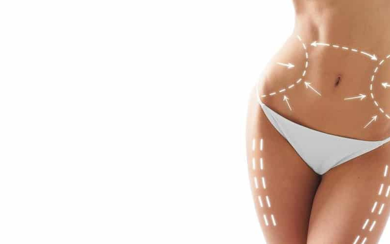 Liposuzione medica con la plasmalipo e la dieta chetogenica