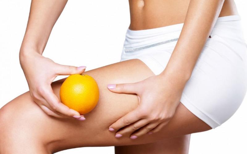 Cellulite come curarla