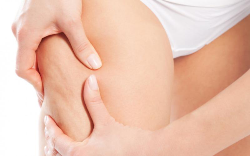 Microneedle cellulite: che cosa è?