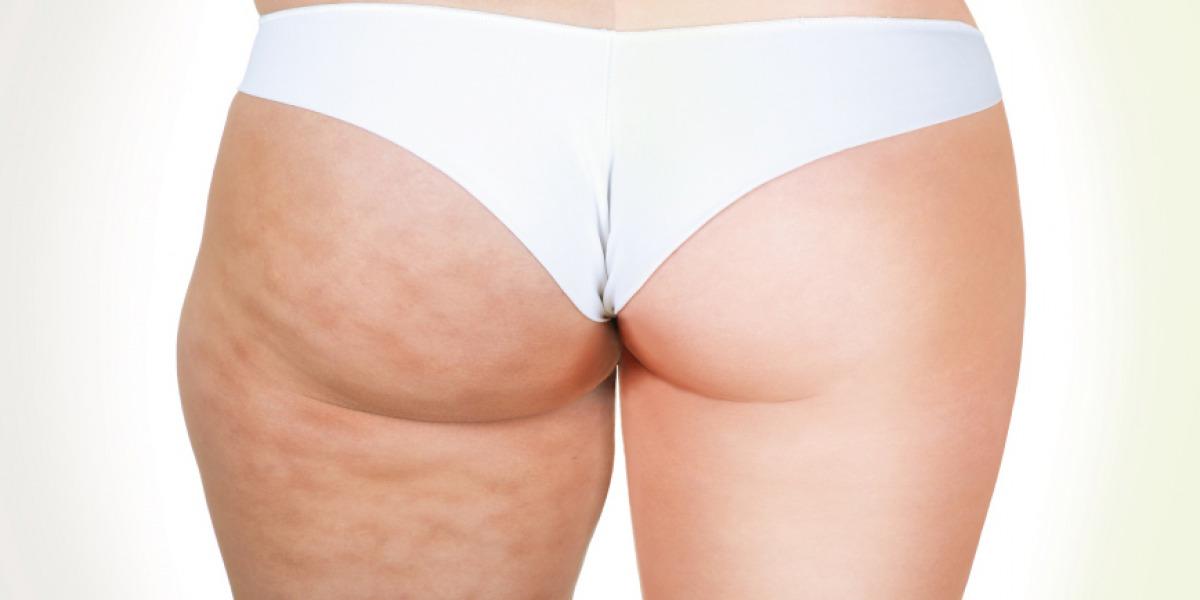 Cellulite Molle