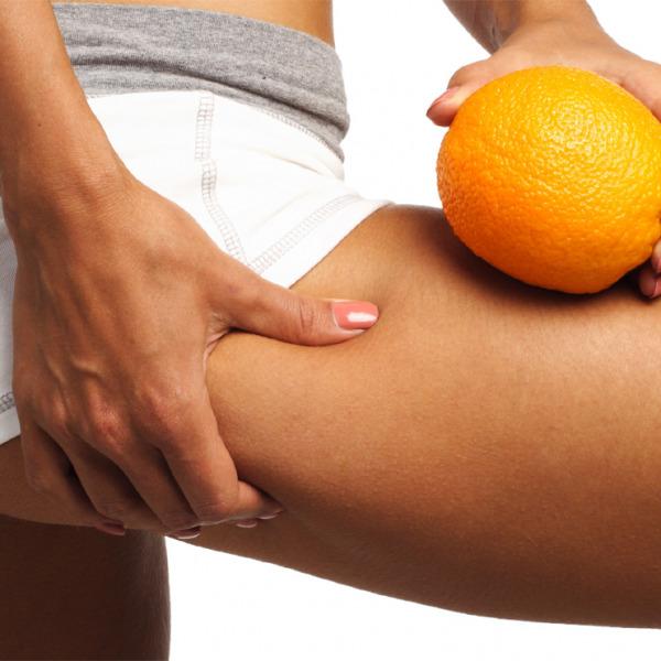 Alterazione strutturale e anatomia della cellulite