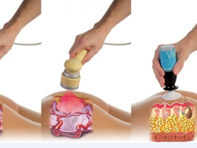 Ultrasuoni per cellulite