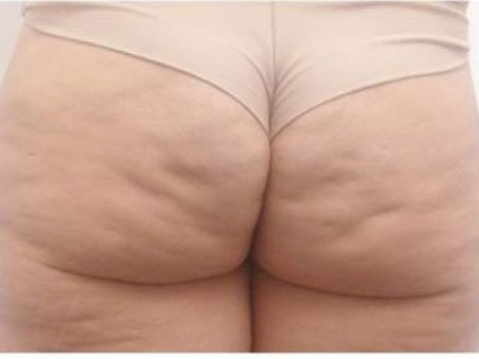 Cellulite Sclerotica